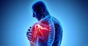 Quick Relief of Arthritis