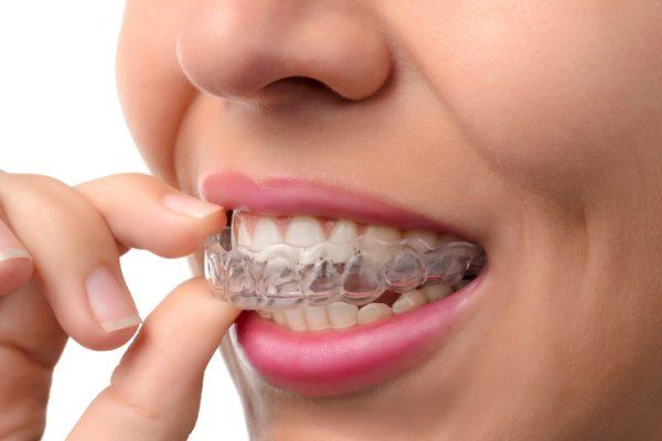 bruxism treatment