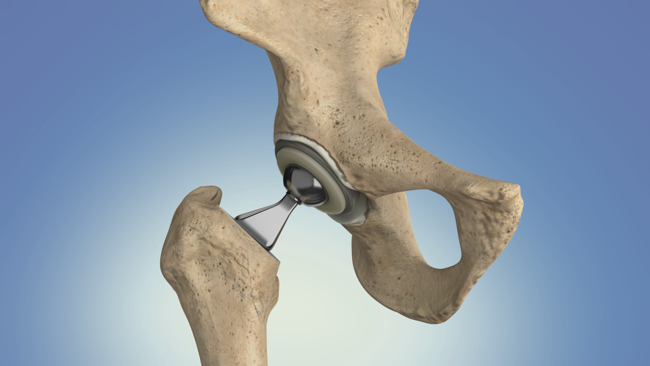 hip replacement surgery singapore