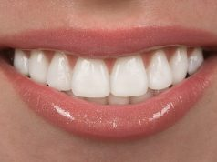 What You Must Know about Dental Veneers