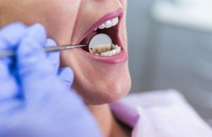 Periodontitis – Important Thing To Know