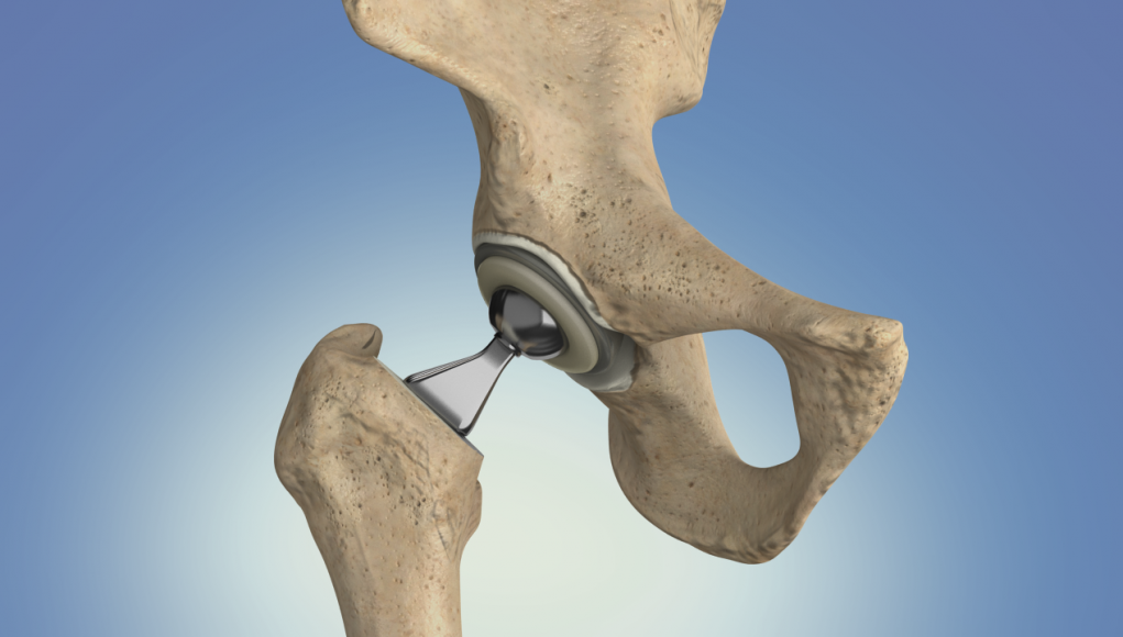 hip replacement surgery singapore